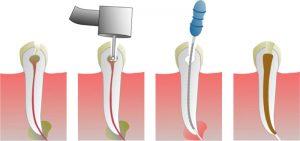 dental-zdravlje-konzervativa-02