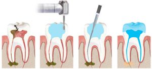 rootcanal_illustration